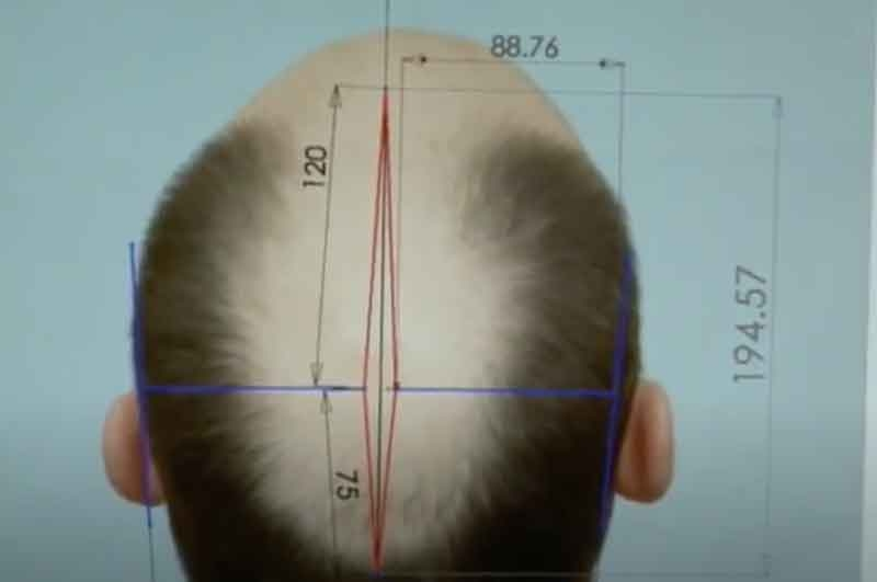 scalp donor area streching
