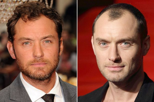 hair transplant celebreties jude law before and after