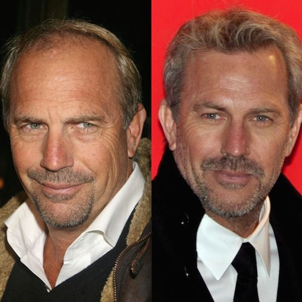 hair transplant celebreties kevin costner before and after