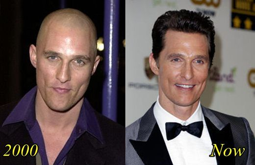 hair transplant celebreties matthew mcconaughey before and after