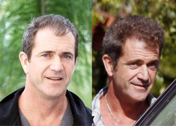hair transplant celebreties mel gibson before and after