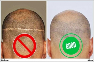 How to Avoid Hair Transplant Scars?