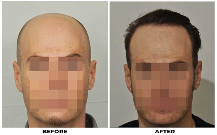 Patient JMC before & after photo