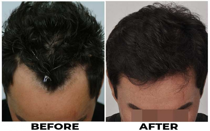 Patient JJA before & after photo