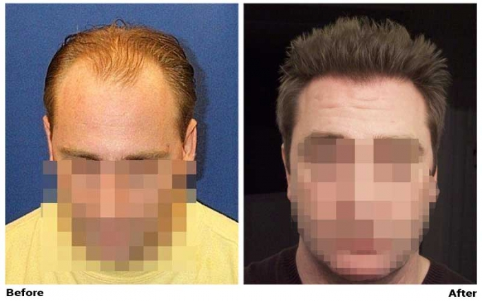 """Wassup"" hair restoration results"