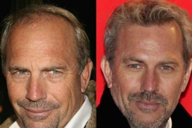 Celebrities Hair Restoration Popularity